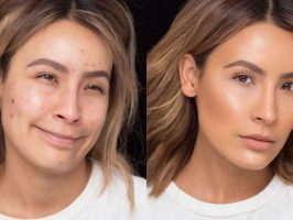 Best Face Makeup for Acne Prone Skin